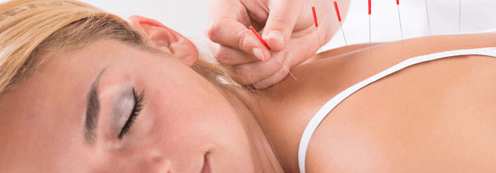 Acupuncture & Wellness Cedar Park TX Acupuncturist